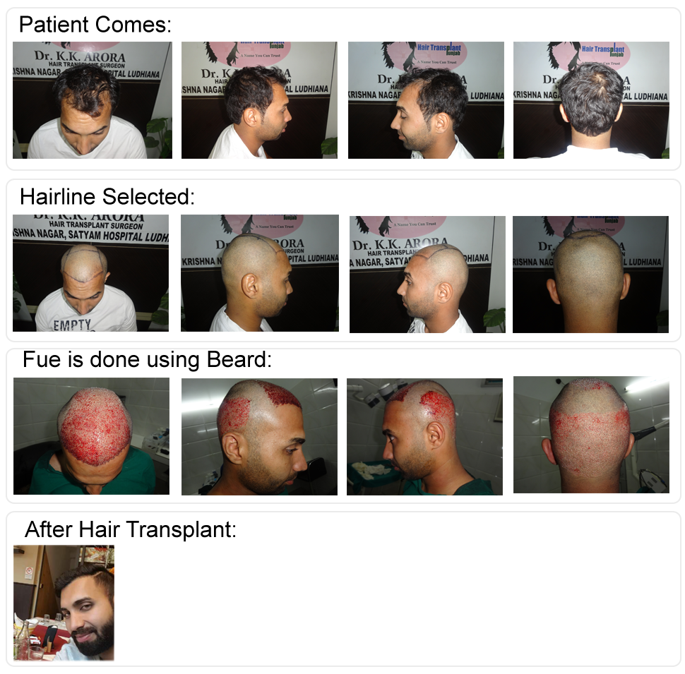 Excellent Results of BIO-FUE After 1 year