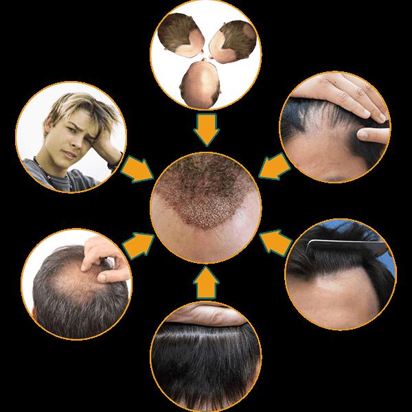 hair loss issues