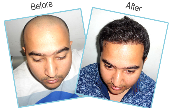 Testimonial Of Our Patient who Gets Successfully 3300 Grafts Transplanted