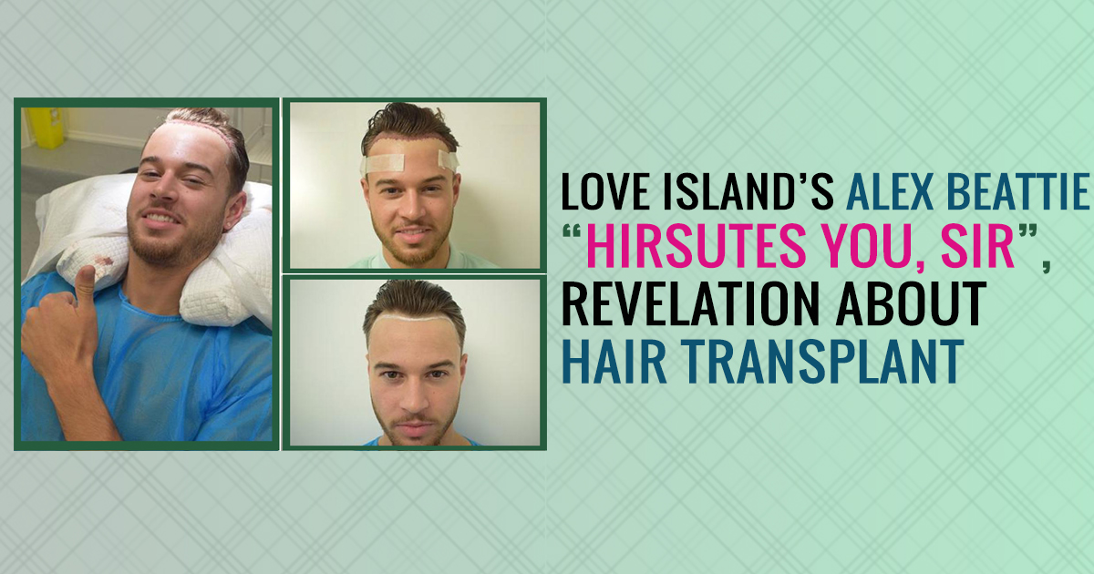 Love Island's Alex Beattie Hirsutes You, SIR, revelation about hair transplant
