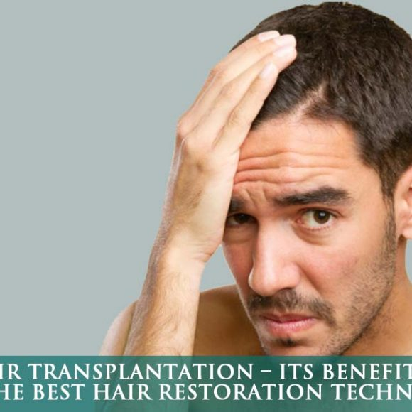 FUE hair transplantation – its benefits make it the best hair restoration technique