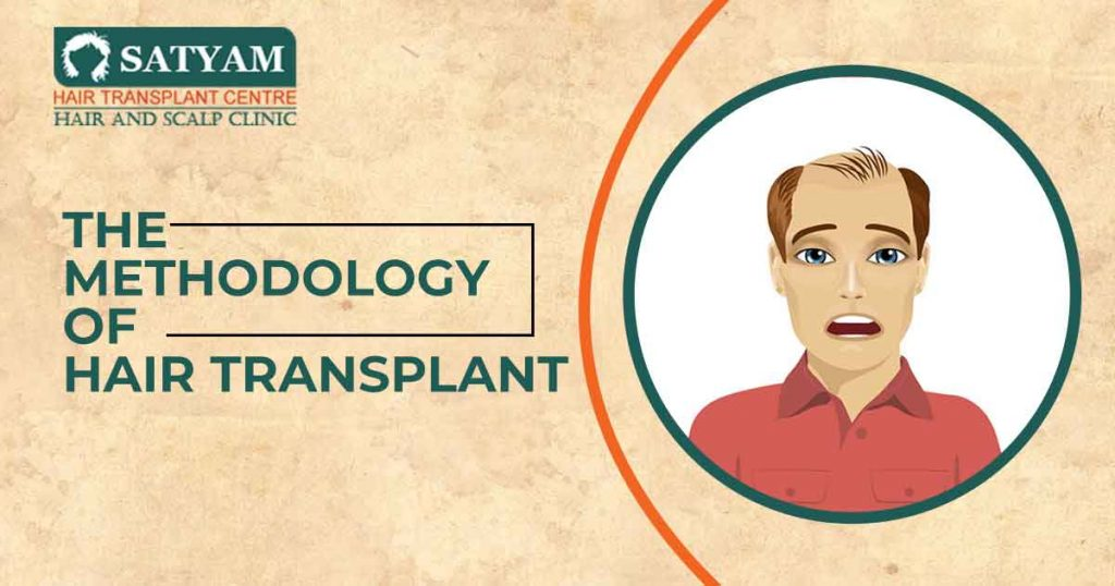 The methodology of Hair Transplant