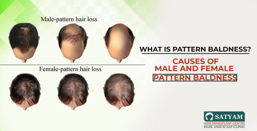 What is pattern baldness? Causes of Male And Female Pattern Baldness