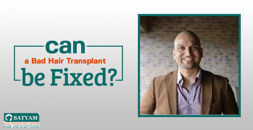 Can A Bad Hair Transplant be Fixed?