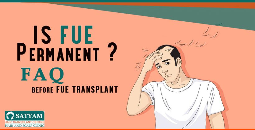 Is FUE Permanent? FAQ Before FUE Transplant