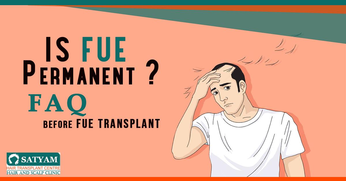 Is FUE Permanent? FAQ Before FUE Transplant