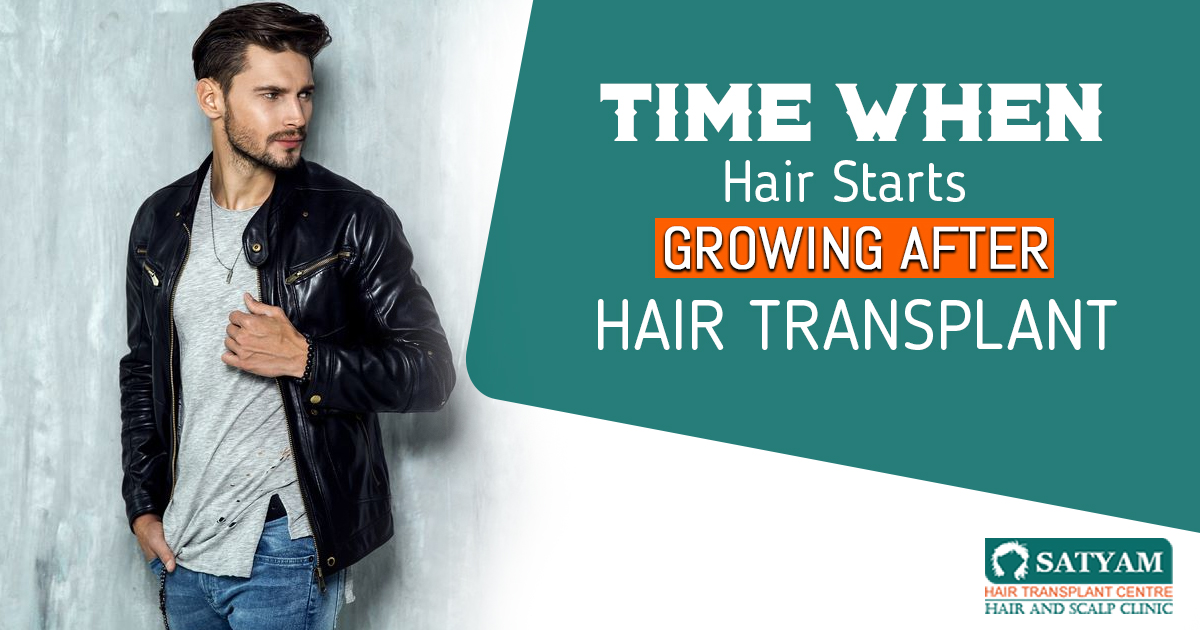 Time When Hair Starts Growing After Hair Transplant