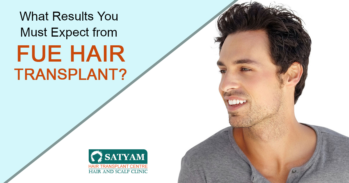 What Results You Must Expect from FUE hair Transplant