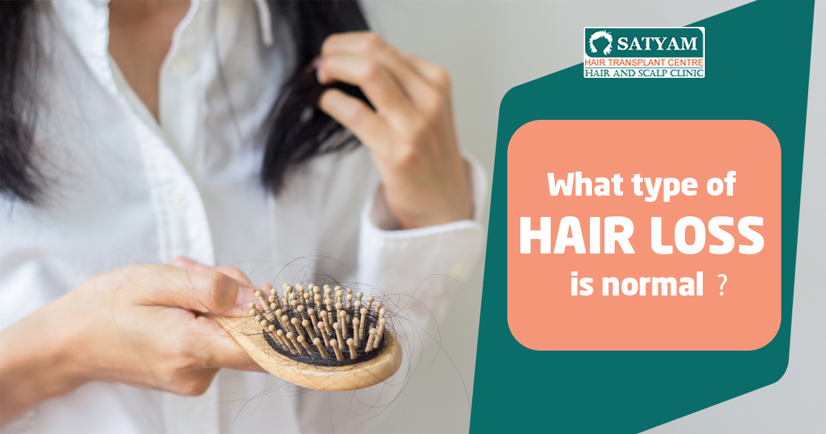 What Type of Hair Loss is Normal?