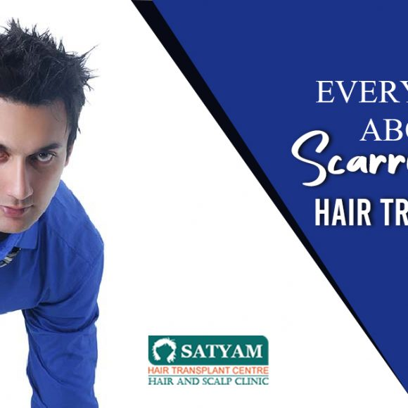 Everything About Scarring after Hair Transplant