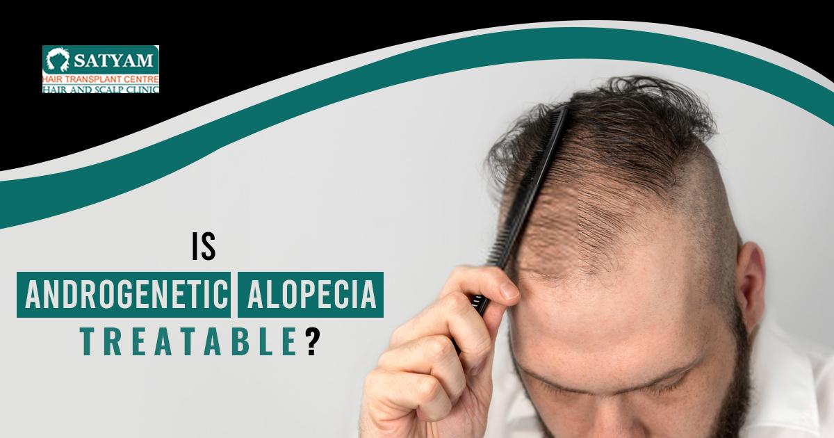 Is androgenetic Alopecia Treatable?