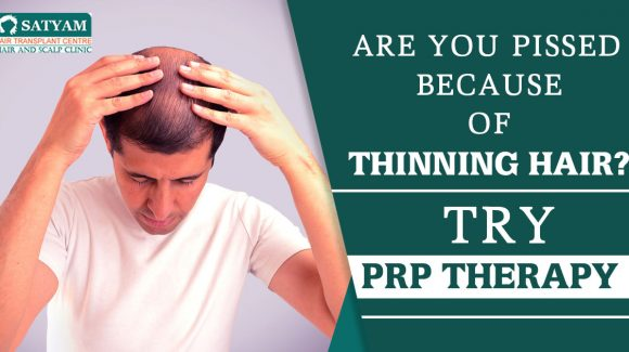 Are you pissed because of thinning hair? Try PRP therapy