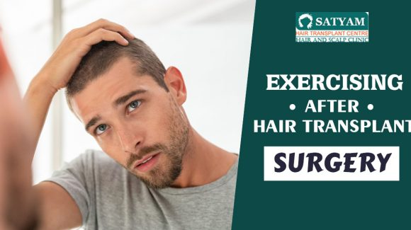 Exercising After Hair Transplant Surgery