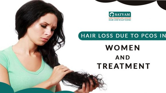 Hair loss due to PCOS in women and treatment