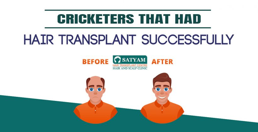 Cricketers that had Hair Transplant Successfully