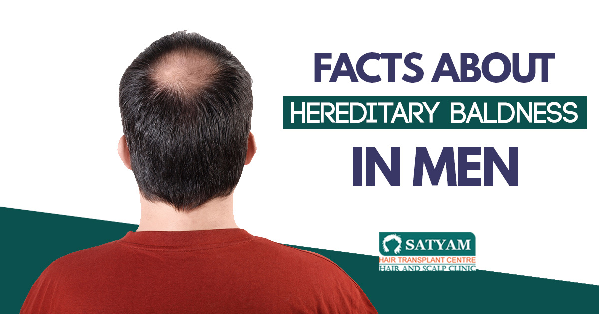 Facts about Hereditary Baldness in Men