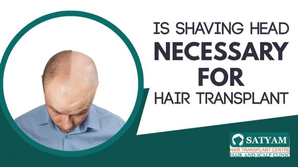 Is Shaving Head Necessary for hair transplant
