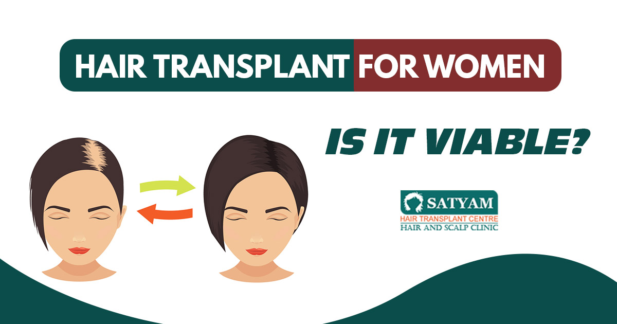 Hair Transplant for women: Is it viable?