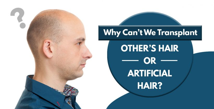 Why Cant we Transplant others Hair or Artificial Hair?