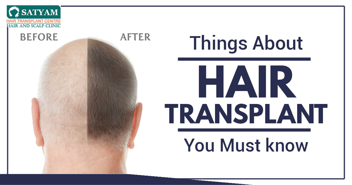 Things About hair Transplant You Must Know